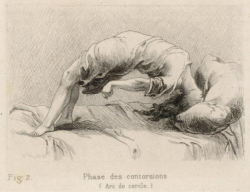 Desen de Charcot, ilustrând o criză de isterie